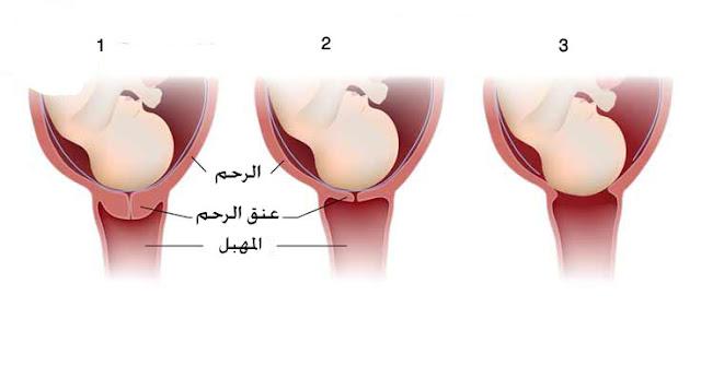 توسع الرحم اثناء الحمل