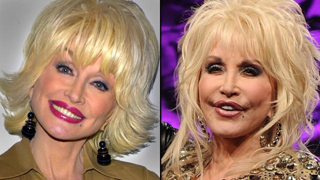 Dolly Parton Facelift