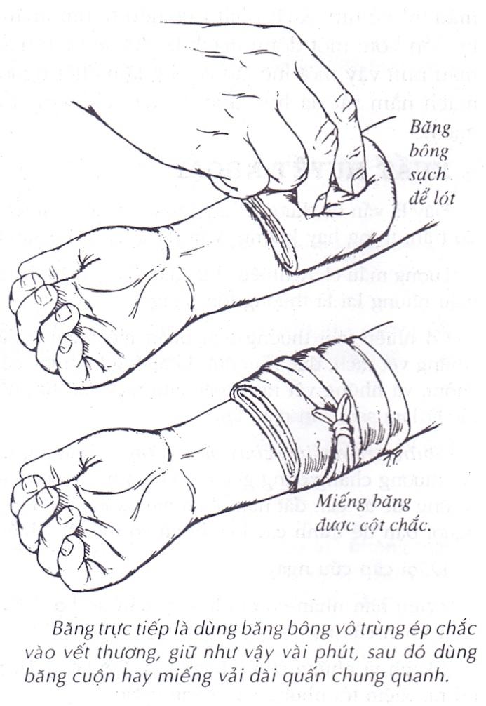 Hướng dẫn cách băng tay và cầm máu