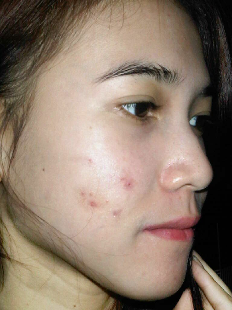 faire disparaitre les cicatrices d acn naturellement 3 mois. Black Bedroom Furniture Sets. Home Design Ideas