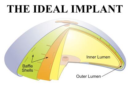 Saline breast implants indiana opinion