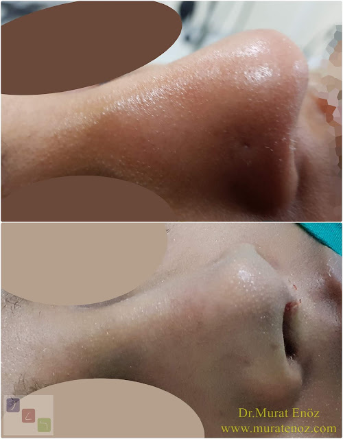 Thick skin nose job - Thick skin rhinoplasty - Ethnic rhinoplasty - Ethnic nose job in İstanbul, Turkey - Ethnic rhinoplasty Istanbul – Ethnic nose surgery in Istanbul – Ethnic nose job in Turkey - Ethnic rhinoplasty Turkey - Ethnic rhinoplasty in Turkey - African American rhinoplasty - Rhinoplasty surgeon in Istanbul - Black nose job - Rhinoplasty for ethnic nose - Rhinoplasty in istanbul