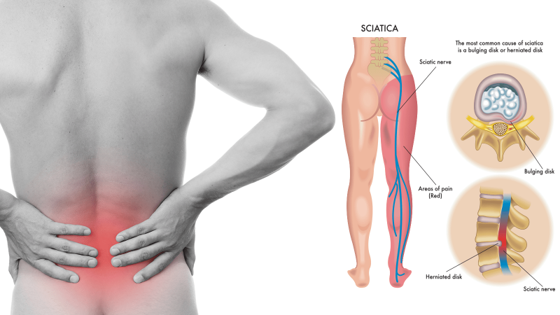 8-Sciatica-Stretches-to-Help-Prevent-and