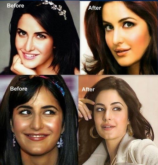 Top 20 Bollywood Beauties Who Have Gone Under Knife And