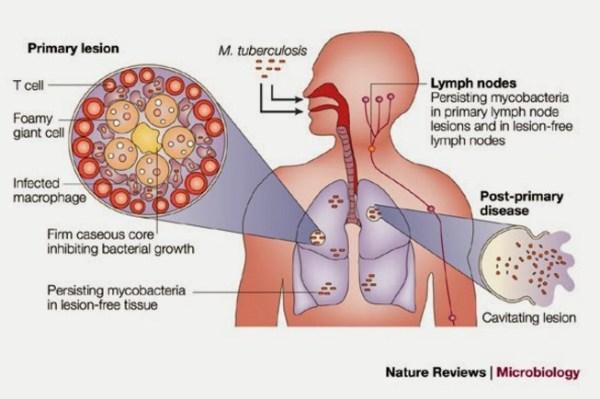 Obat TBC di apotik