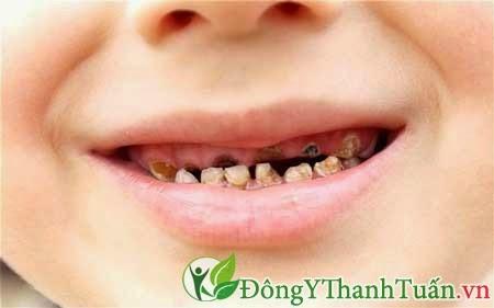 Sâu răng và bệnh răng miệng thường gặp ở trẻ em