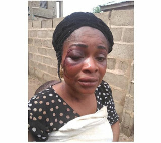 Woman Beaten By Husband Over Infidelity