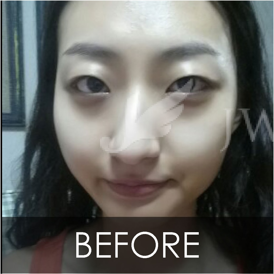 JW Plastic Surgery Korea] Double Eyelid Surgery Non Incision + Fat