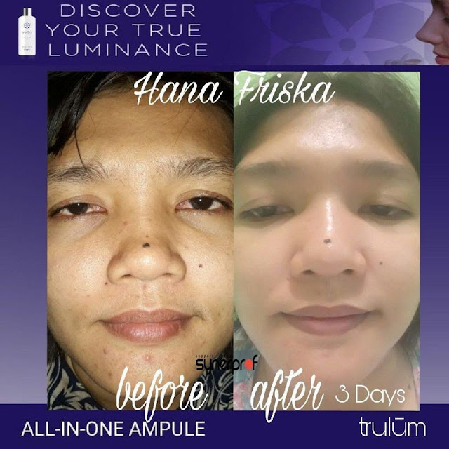 Jual Serum Penghilang Keriput Trulum Skincare Menui Kepulauan Morowali