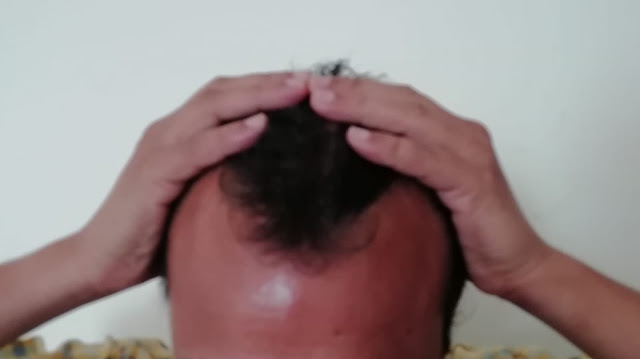 day 0 hair transplant picture