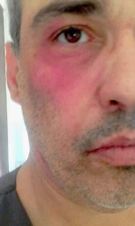 Médico é agredido em pronto-socorro após negar atestado