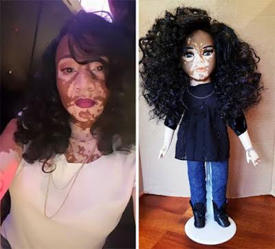 Artista negra se inspira em vitiligo e cria bonecas para crianças com a mesma condição