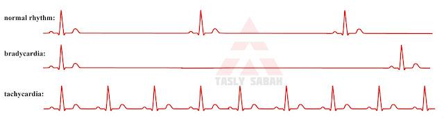 Jenis Aritmia jantung