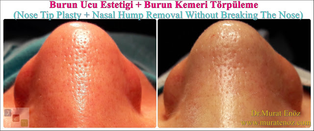 Nose tip plasty operation in İstanbul - Nose tip lifting in İstanbul - Tip plasty in İstanbul - Nose tip reshaping in İstanbul - Nose tip surgery in Turkey - Open technique tip plasty operation in İstanbul