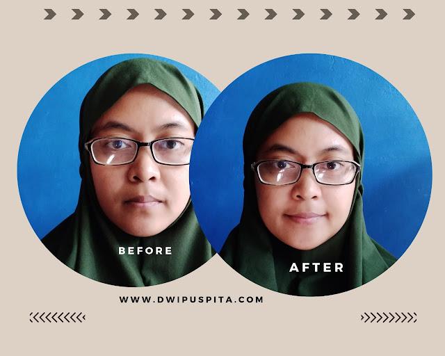 Before after penggunaan green glow maresha skincare