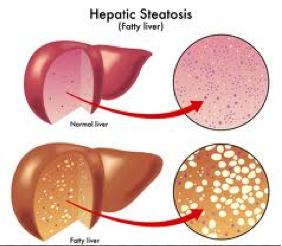 Cara Menghilangkan Fatty Liver