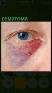 около глаза имеется гематома красно и синего цветов