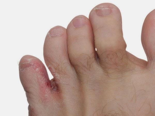 mâncărime la picioarele arzătoare