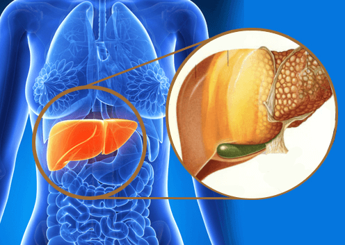 gallbladder cancer symptoms Signs