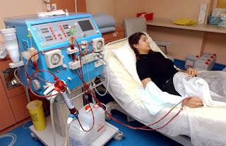 Efek Samping Cuci Darah Bagi Penderita Gagal Ginjal