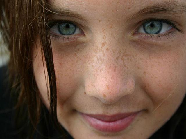 Cara Menghilangkan Flek Hitam di Wajah Secara Alami dan Cepat