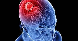 beyin tümörü, beyin kanseri,