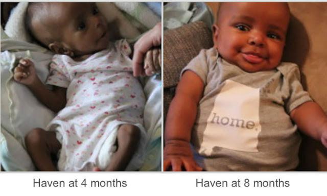 Adoptan a niño desnutrido y cambia de forma impresionante