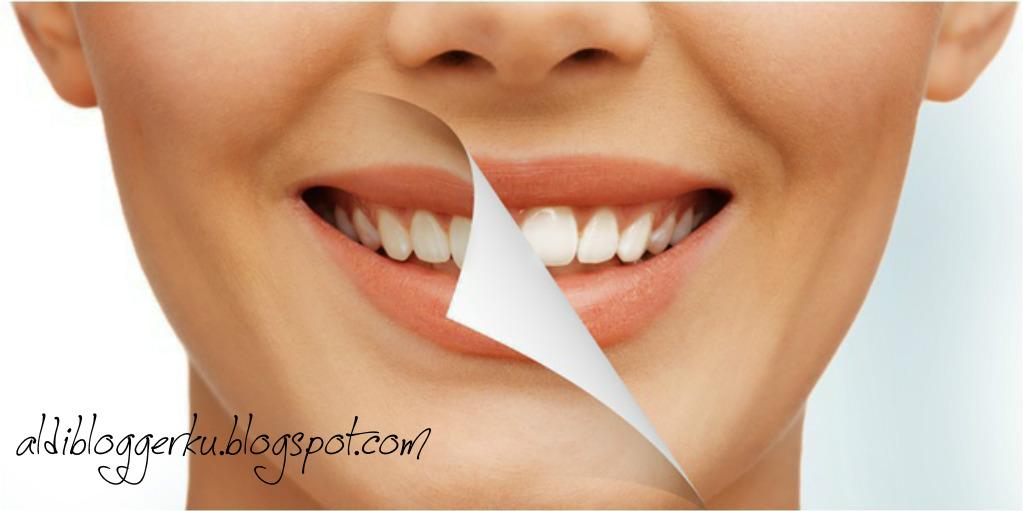 Silahkan Dicoba 6 Cara Cepat Memutihkan Gigi Secara Alami Aldi