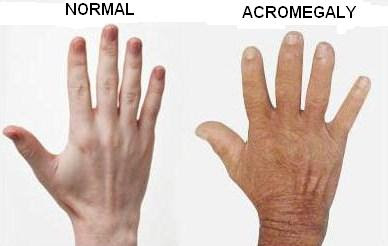 Acromegaly is a disease of the pituitary gland Acromegaly Definition : What Is Acromegaly?
