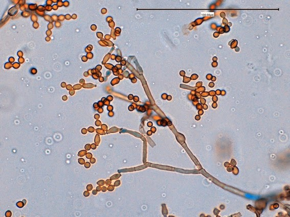 Fun With Microbiology (What's Buggin' You?): Cladosporium ...