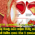 Blood cholesterol-filled channels to clean the catch here is amazing foods to consume 5