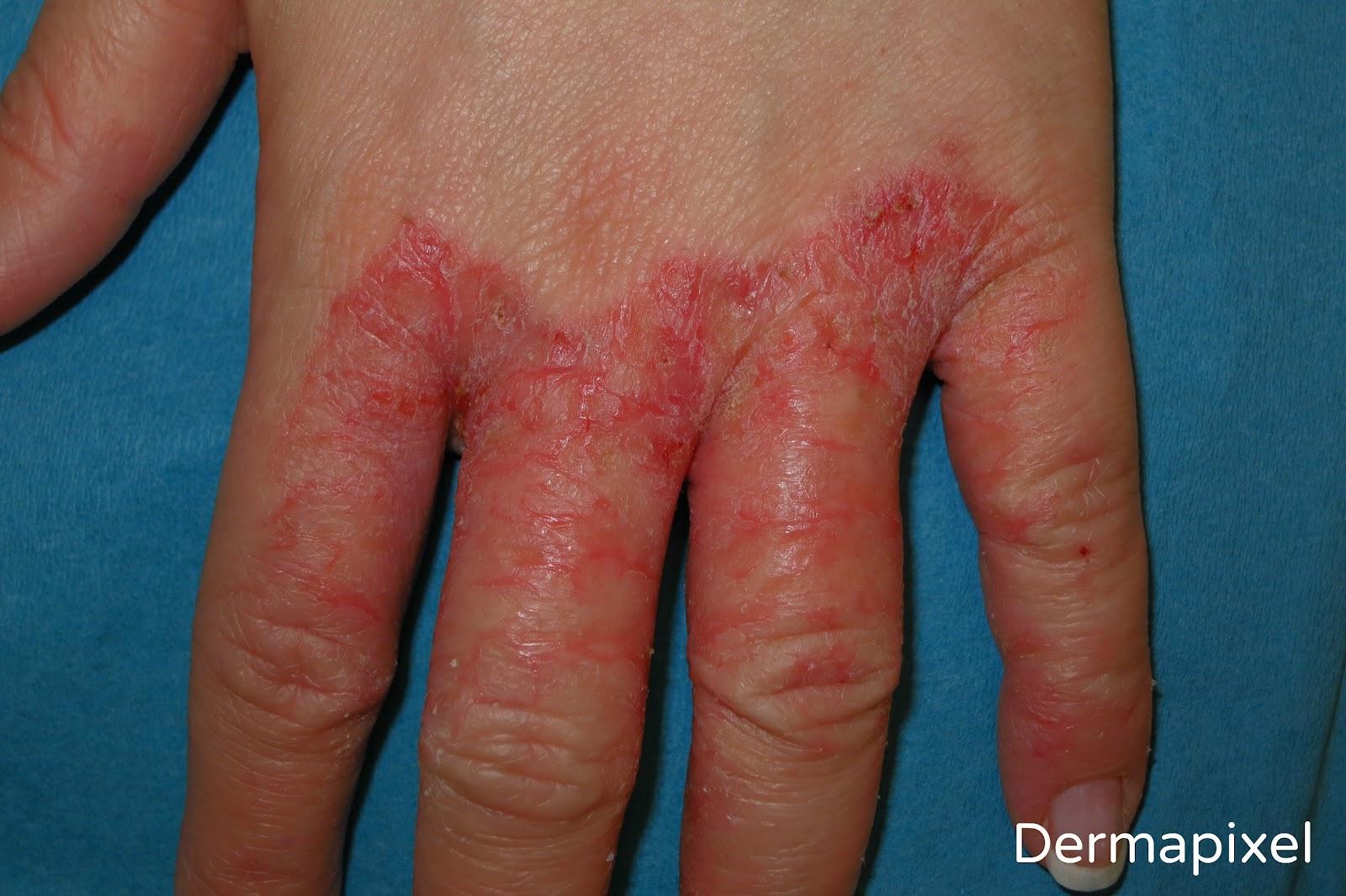 Los baños con la avena pelada a la psoriasis