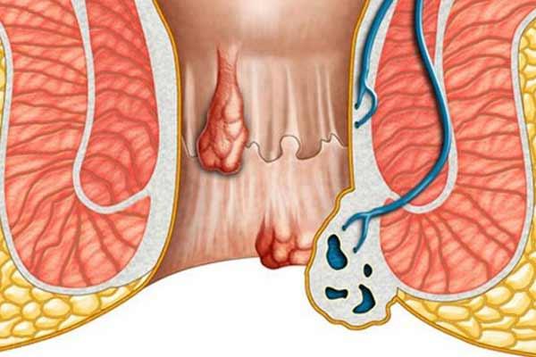 calmeaza inflamarea hemoroizilor