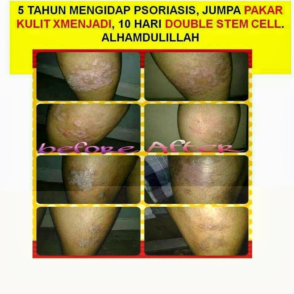 Phytoscience Double And Triple Stem Cells Datin Umie Aida