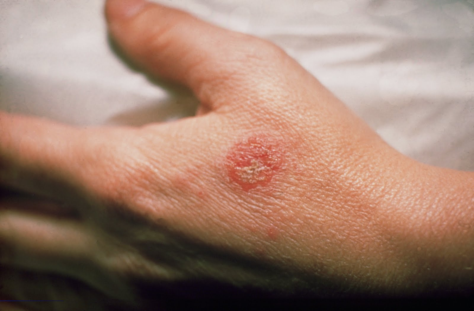 what are the main causes of eczema? image