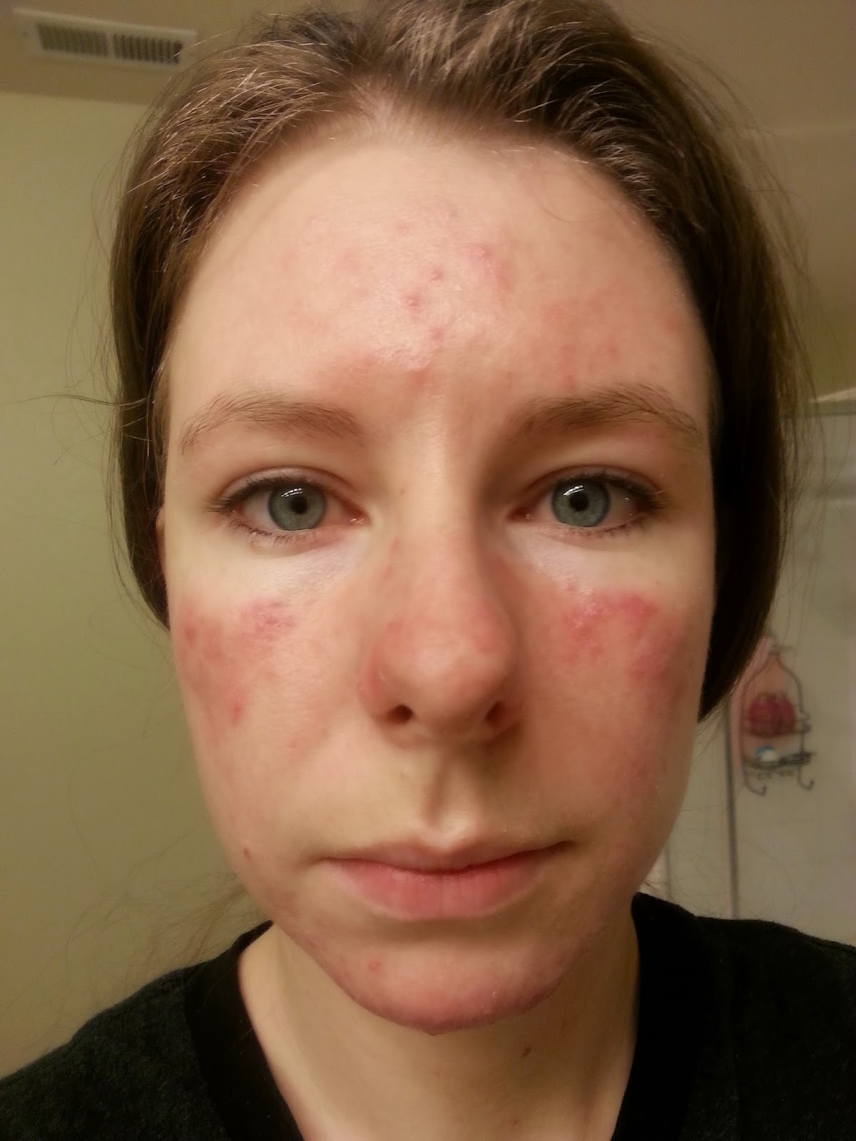 My Fight Against Demodex Mites A Back Story