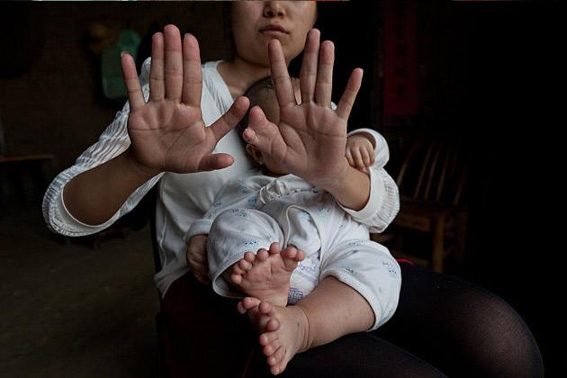 Mãe do bebê chinês com Polidactilia também tem a mesma anomalia genética