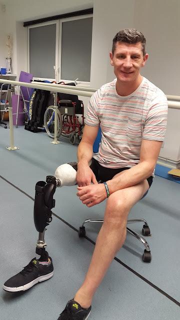 Above knee amputee, BTK Crossover,Glenn Johnstone
