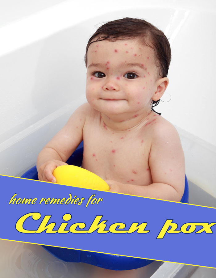 Home Remedies for Chicken Pox