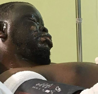 k - One Year Ago, Gas Explosion Changed My Life - Fashola's Brother Narrates (Photos)