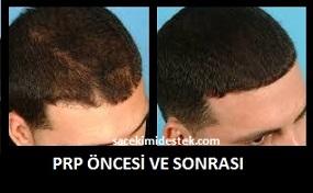 prp saç tedavisi yaptıranlar 17