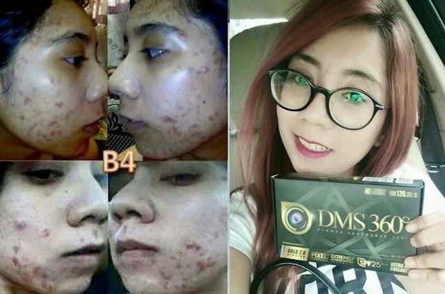 DMS 360 / 360 Cream Foundation 4D / 360 Glowing Serum / Glutax Dermax Superskin