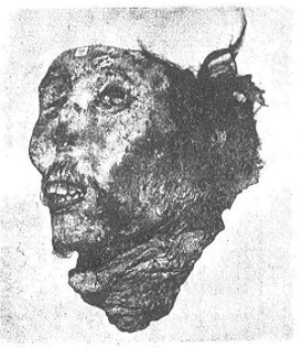The head of Jimmy Ah Sue in a Sydney museum (from Greensop, 1944)