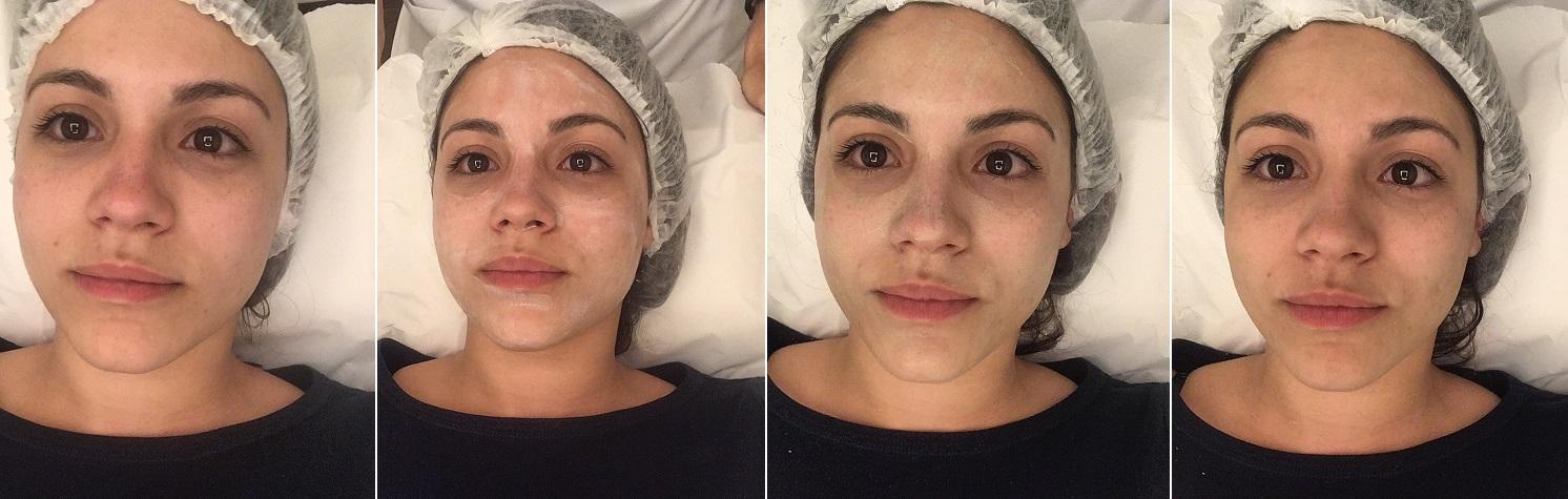 tratamento express Anna Pegova