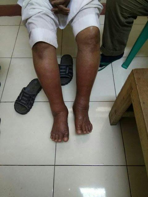 kaki ustad abu bengkak - Terlalu! Ustadz Ba'asyir Sakit, Izin Berobat Tak Ditanggapi Densus 88 dan BNPT