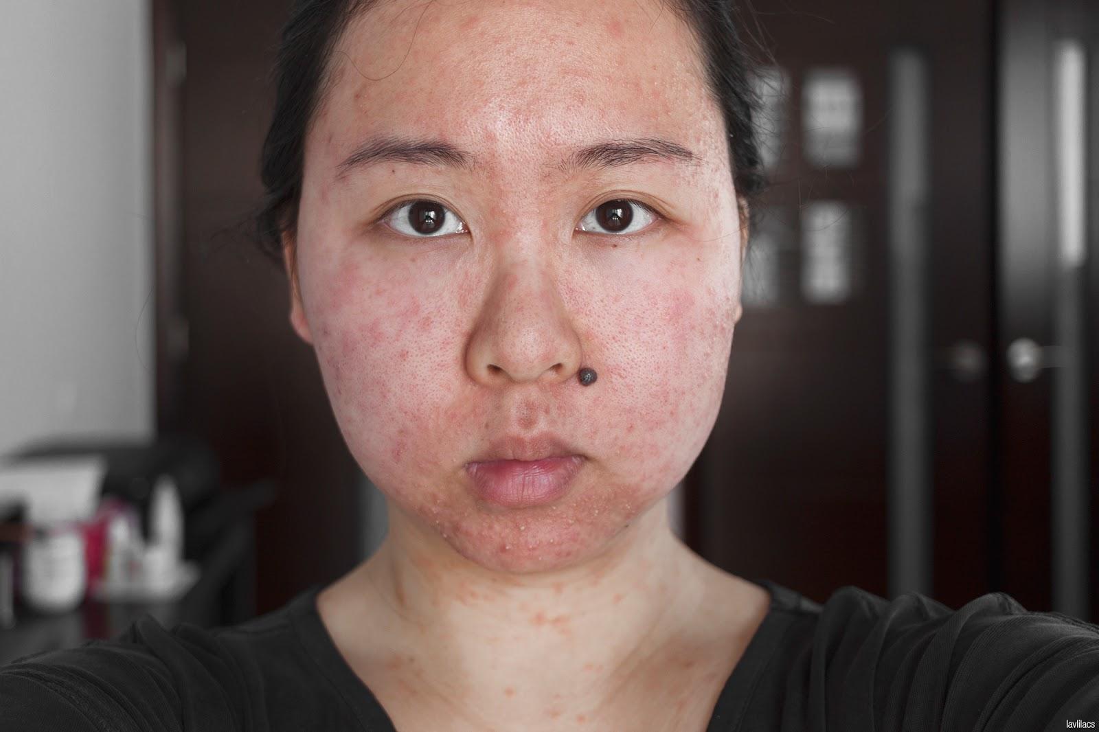 skin allergy - 2 days after reaction