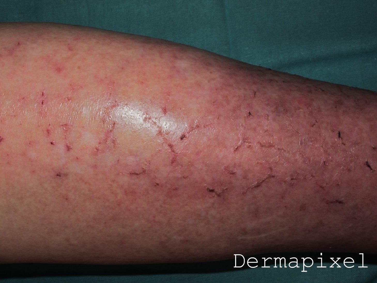 dermatitis gravitacional