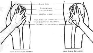 músculo glúteo