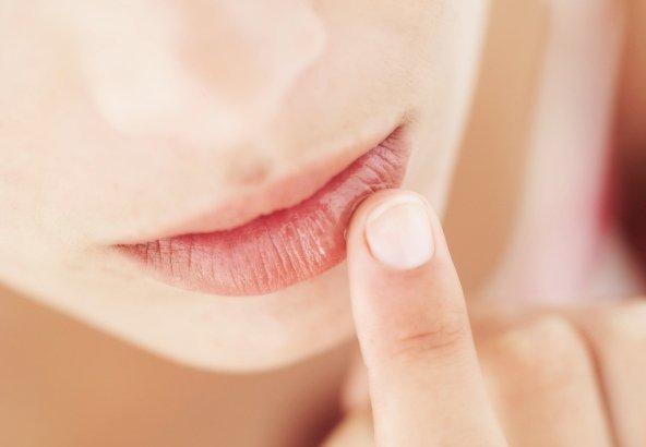 4 Cara Jauhkan Bibir Pecah-Pecah dan Kering Selama Bulan Puasa