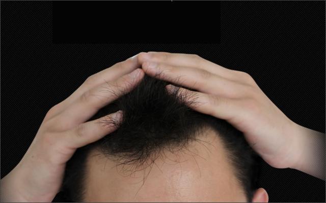 M字に効く「薬用プランテル」の育毛効果とは?